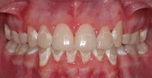 Help! there's white stained teeth after braces?