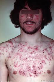 Any quick cure for chest and body acne with flaky dry skin?