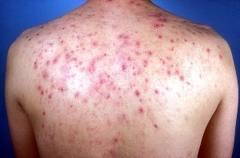Acne like pimples on shoulders and back start red and after a while turn into brown spots that stays for ever... What could it really be ?