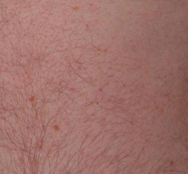 I have brown spots appearing on my body what could it be, what to do?