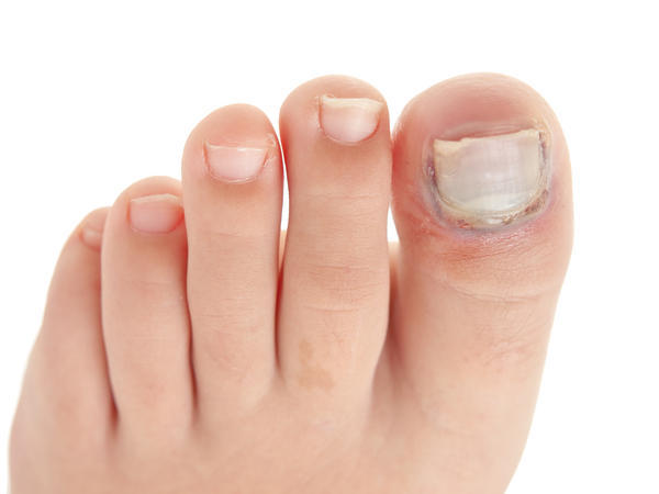 What to do if i had an ingrown nail and they cut the nail in half. And now its hurts out of nowehere and it kills any 1 know how it can heal fast and less painful?