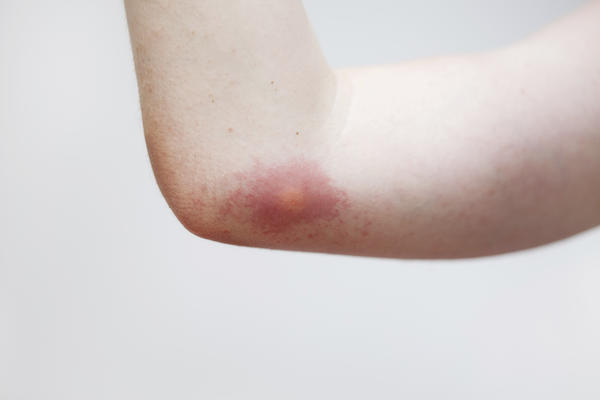 What could cause rash on upper arms and chest?