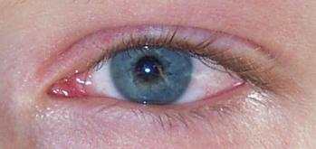 Is it pink eye or blepharitis when lid crusts but white is reddish?