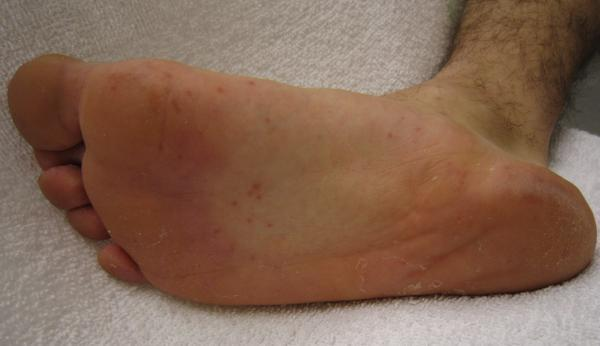 What causes little water blister on feet and arms?