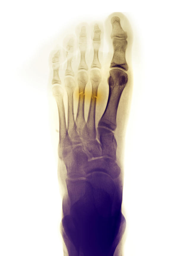 how to know if you have a hairline fracture