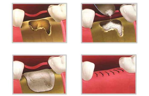 Is it advantageous to have a bone graft from yourself rather than a cadaver?