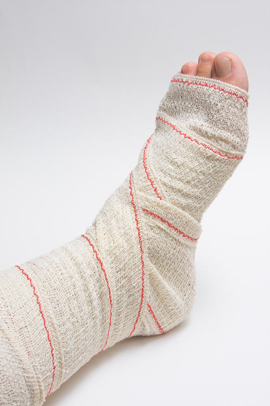 Subsequent to a month, should an ankle sprain still hurt?