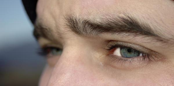 Deep-set small eyes cause astigmatism & nearsightedness? How?