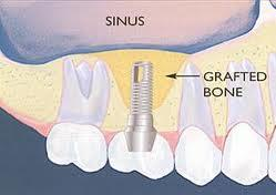 Can you tell me about got a sinus lift for dental implants and how that go?