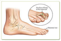 "Can you give me more info on surgery to correct a ""hammer toe""?"