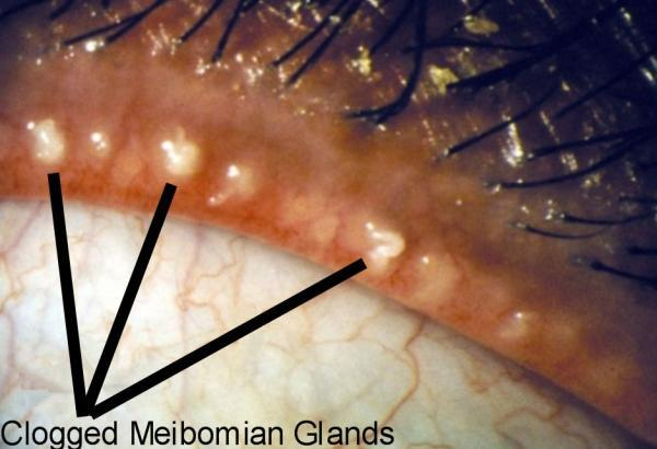 How to cure blurry vision from blepharitis ?