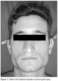 What causes enlargement of muscles below the ears?