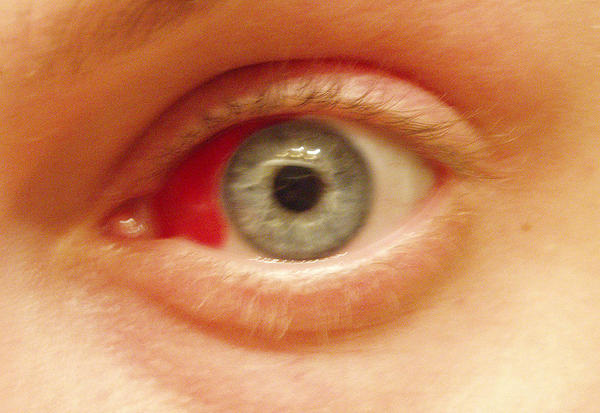I have eye pain, and looks like blood vessels have burst in my eyes, right when I wake up in the morning and later on it dosnt hurt. What is this?