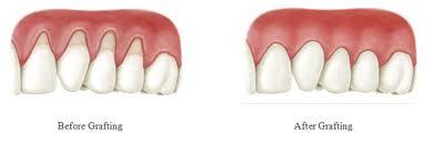 Just how swollen can I expect my facial area to be following an allograft gum tissue grafting on two adjacent upper front teeth?