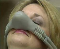 When using nitrous oxide at the dentist office, can someone have auditory hallucinations?
