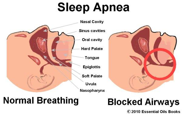 Can you tell me what you suggest if a person has sleep apnea, is it dangerous to be on seraquil if it may depress the nervous system and make him not breath enough at night?
