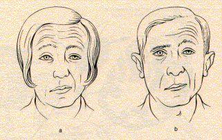 Stroke on what side of the brain would experience a left facial droop?