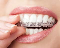 I want to make my teeth look really white. What are the best like drugstore teeth whitening products that actually work?