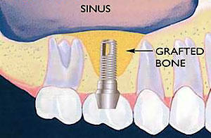 Please answer me. Is a sinus lift and the inserts into the jaw inserted at the same time?