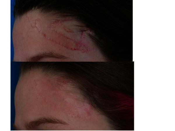Help! need to know if there's anything to reduce the appearance of scars from an injury?
