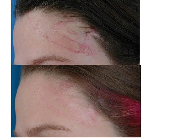 Help! Need to know if there's anything that can reduce the appearance/get rid of scars?