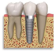 Could you explain why does my dental implant hurt?