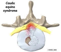 Hi doctors, was just wondering what is cauda equina syndrome and how will it affect me?