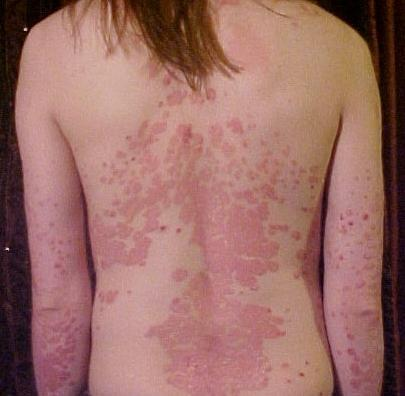 I affected in psoriasis disease, it is curable?