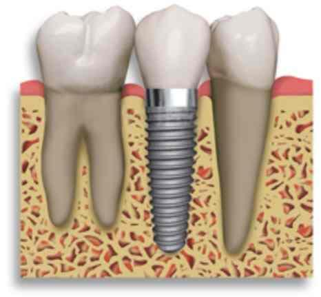 After gum disease and getting a denture can you have two teeth replaced as implants as well?