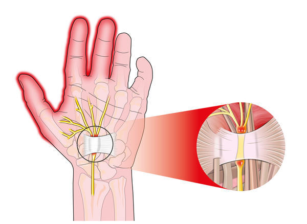 Could you tell me why my left hand is numb and tingling?