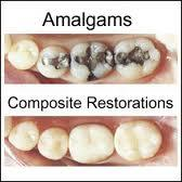 Can you tell me are silver amalgam fillings or white resin fillings safer for health?