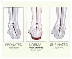 Please help! I have pronated feet and no health care available?