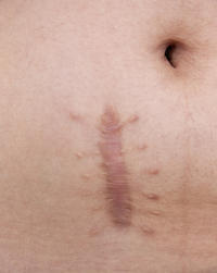 How can naturaly disapear my stretch mark on my body?