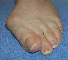 Can you please define hallux valgus deformity?