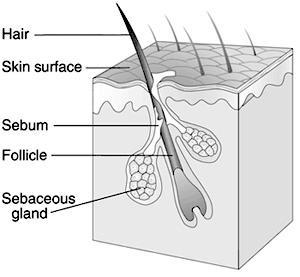 What are the causes of skin cancer nowadays?