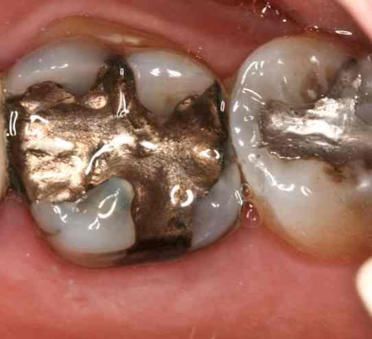 Do you know if nickel contains amalgam?