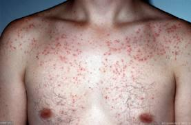 Can you give me suggestions for my acne on chest please help?