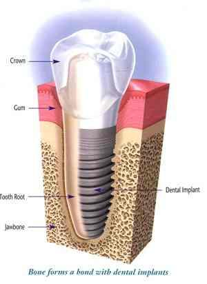Are dental implants good or bad what should I do?