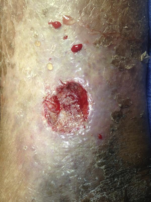 Could a venous ulcer lead to a staph infection?