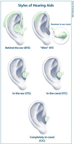 I need hearing aids . Do I see ENT or audiologist?