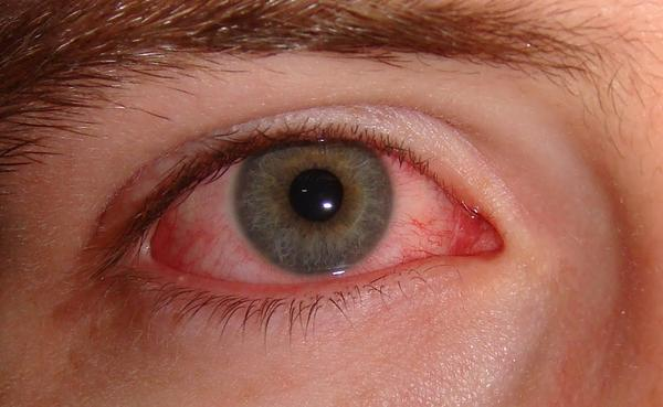 Why is my eye red and pussy after a night?