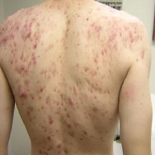 Can any doc tell me what's the best treatment for acne on the back and chest?