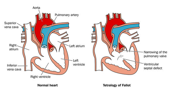Please answer! what large artery does blood enter as it leaves the left ventricle of the heart?