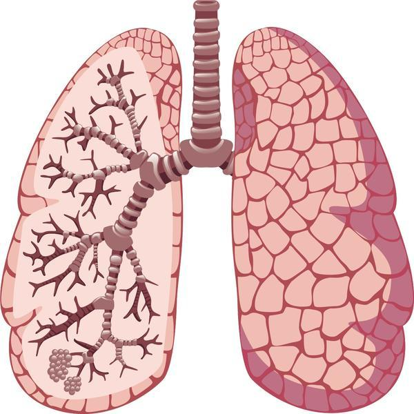 Can you tell me the four stages of lung cancer?