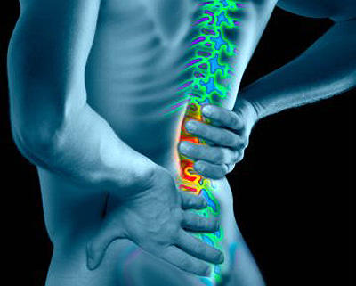 Post acdf c5-6 c6-7 my conditions are cervical radiculopathy, intervt cerv disc d/o w/myelopathy cerv reg. Can it cause recurring severe back pain why?