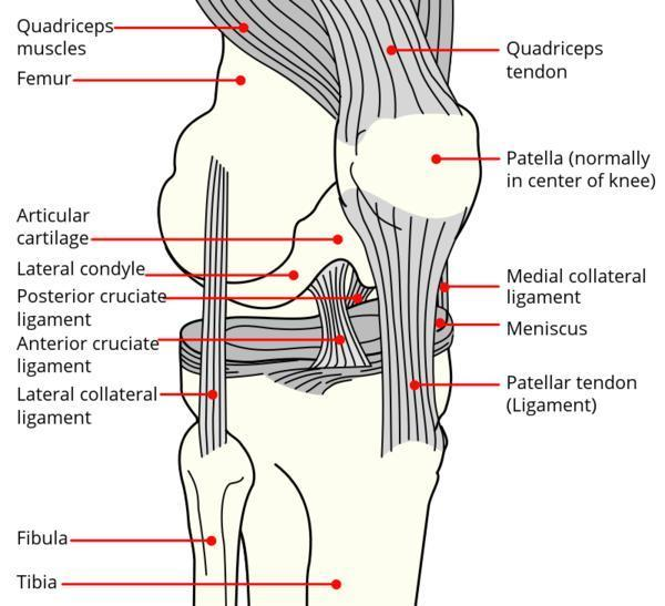 Is overweight linked to repeated ligament tear?