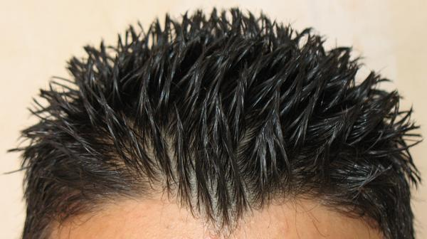 My Scalp Sometimes Feels Like The Hair Follicles Are Irritated And Sensitive It Is Usually