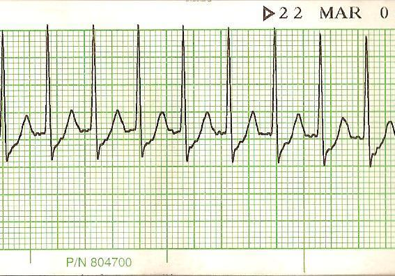 Can being on ritalin (methylphenidate) for 15 years be the cause of my daily tachycardia? I no longer take it but was wondering if this is a long term effect?