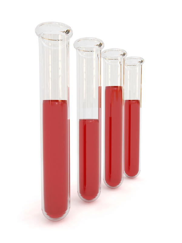 Can these blood test results indicate anemia?