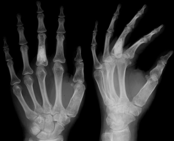 How do I know if my index finger is dislocated, sprained, or even broken?